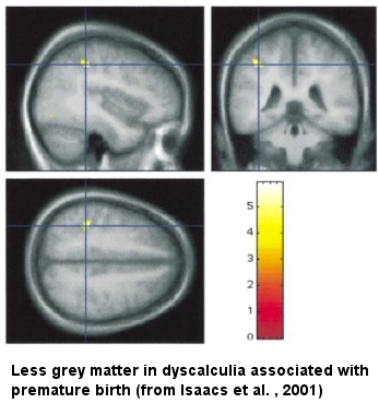 Less grey matter in dyscalculia associated with premature birth (Isaacs et al., 2001)